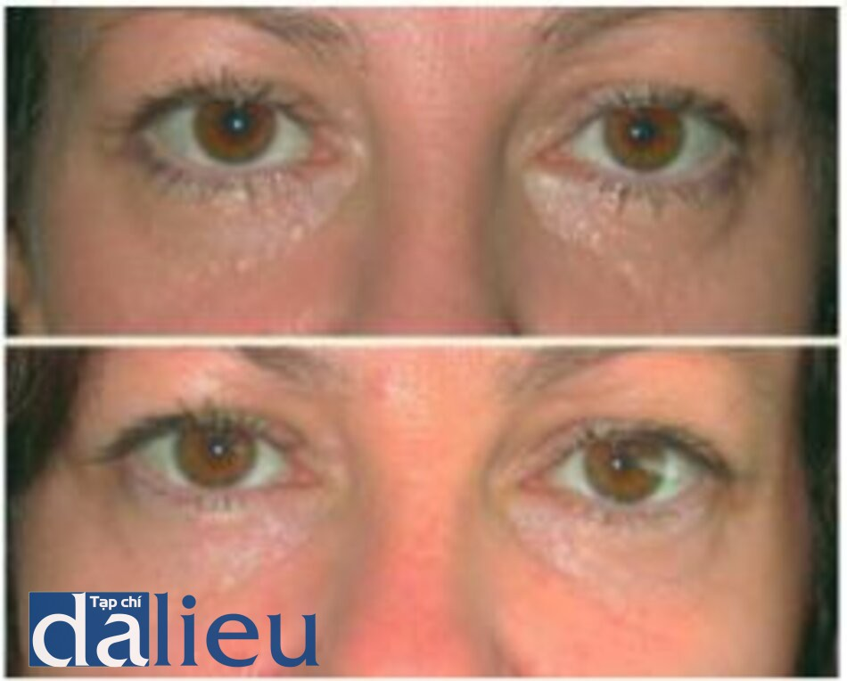 Fig. 1.14. Patient with syringomas before (top) and 3 months after (borrow) erbium laser treatment