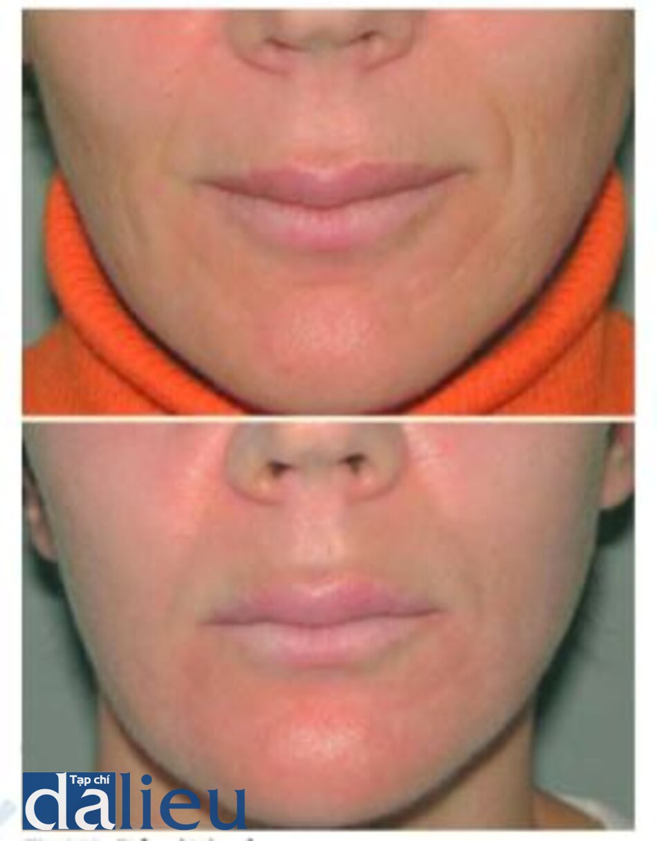 Fig. 1.15. Before (fop) and 3 months after (£>0ffõm) combined erbium and CO; laser treatments