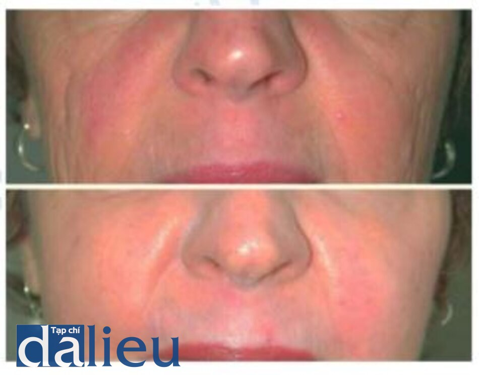 Fig. 1.16. Before (top) and 3 months after (bottom) treatment with both erbium and CO; lasers for a combination of acne scarring and photoaging