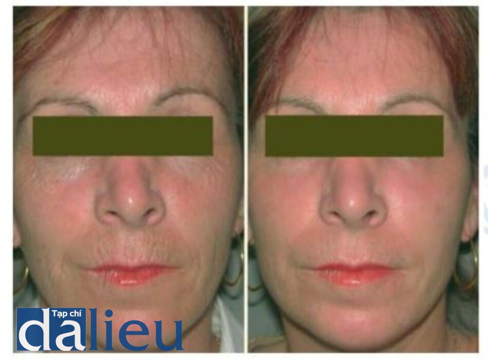 Fig. 1.17. Before (left) and 3 months after (right) treatment with combined erbium and co> lasers for severe photoaging changes