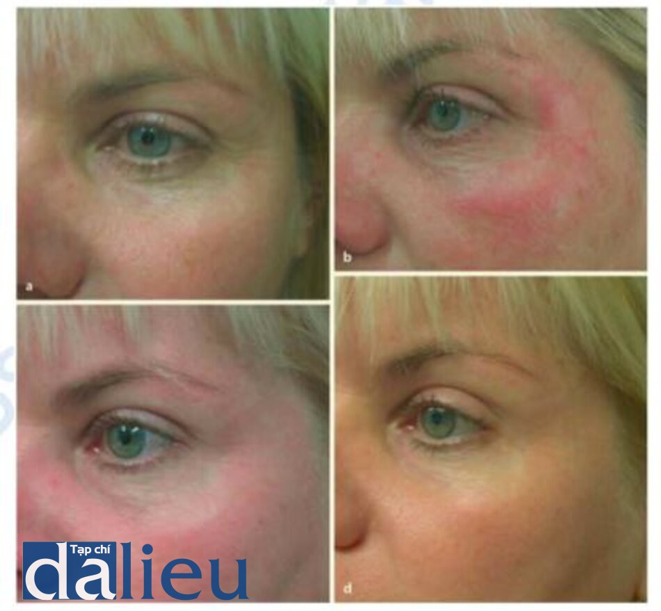 Fig. 1.18 a d. Patient treated with Portrait plasma skin resurfacing at a baseline, b 1 week, c 6 weeks, and d 3 months after the procedure