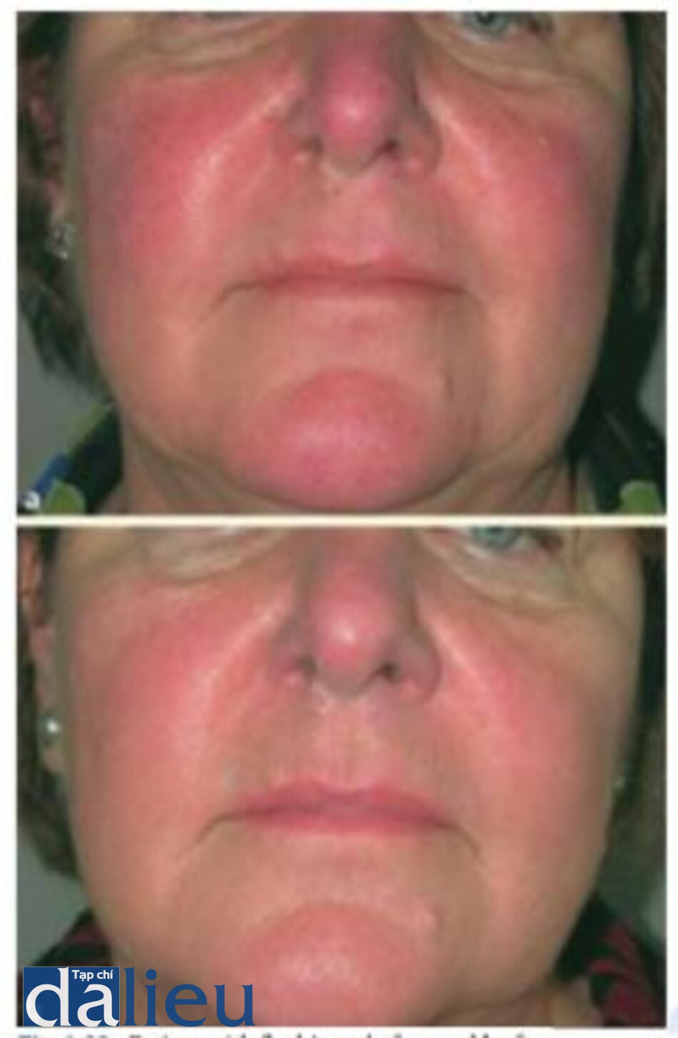 Fig. 1.23. Patient with flushing a before and b after four treatments of combination 532 nm/1064 nm laser treatment