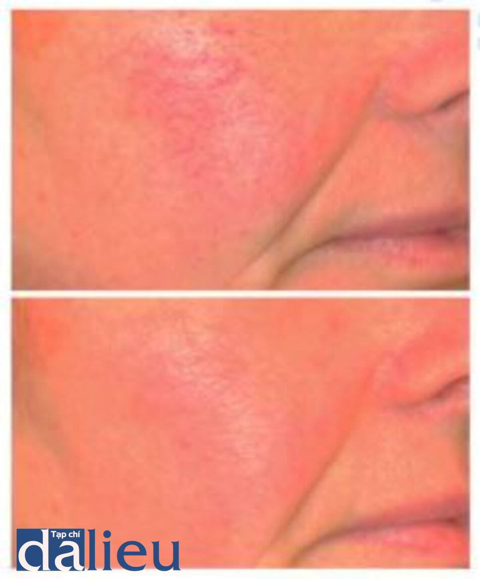 Fig. 1.24. Patient with widespread telangiectases be fore (top) and after (hơííơnt) two treatments with a KTP laser