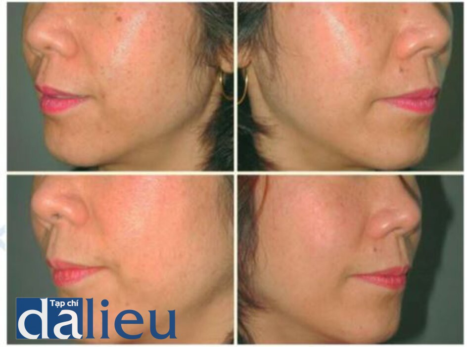 Fig. 1.26. Patient with epidermal pigmentation, before (top) and after (bottom) two treatments with a long pul¬sed laser