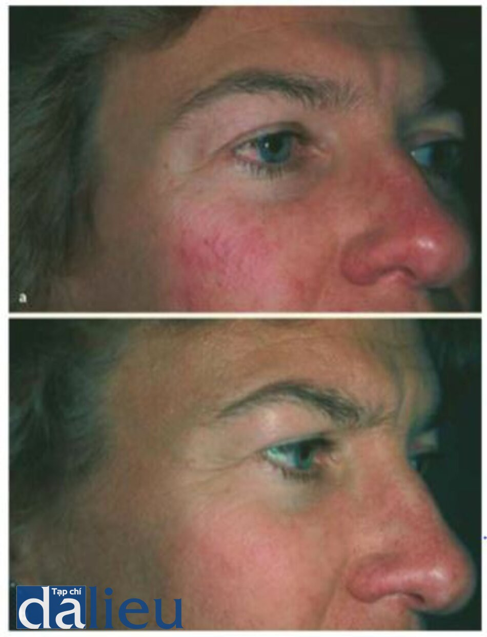 Fig. 1.28. a Before and b after intense pulsed light treatment (photographs courtesy of Dr. David Goldberg)