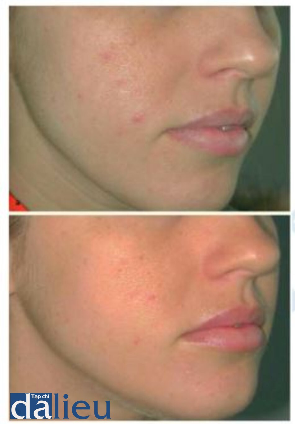 Fìg. 1.30 a, b. Mild acne and acne scarring a before and b after a single treatment with the 1450 nm diode laser