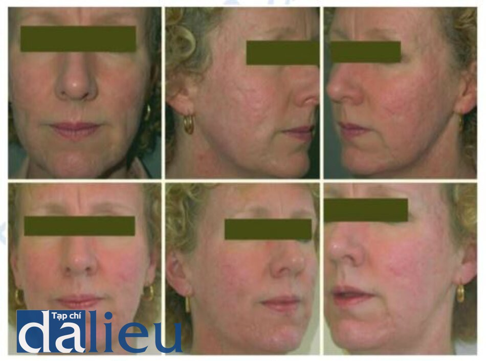 Fig. 1.32. Fractionated resurfacing, as well as fat transfer for postacne scarring, upper Before treatment, lower after treatment. Image courtesy of Reliant Technologies