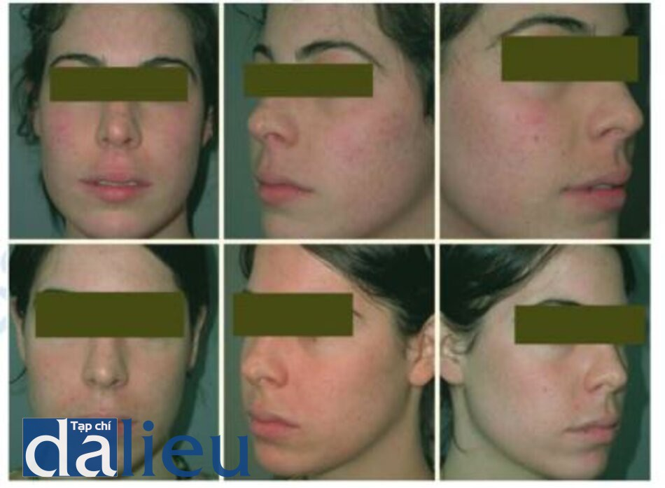 Fig. 1.35. Before (upper) and after (lower) three treatments with fractional photothermolysis