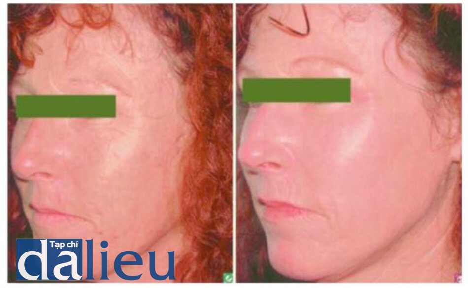 Fig. 1.5. Before (left) and 3 months after (right)CO2 laser resurfacing