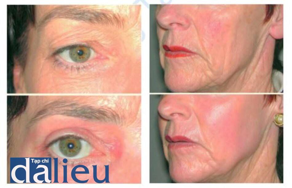Hình 1.6. Trước (trên) và sau 3 tháng (dưới) sau cắt mí trên bang laser Co2 kết hợp trẻ hoá quanh mắt và Hình 1.7. Trước (trên) và sau 3 tháng (dưới) tái tạo bề mặt bang laser và tiêm mỡ