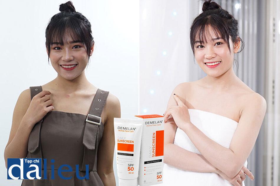 Hình ảnh trước và sau khi sử dụng kem trắng da Demelan