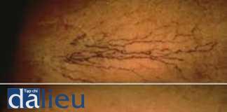Hướng dẫn sử dụng laser và ánh sáng xung mạnh trong điều trị bệnh lý mạch máu từ Hiệp hội Laser Da liễu Châu Âu