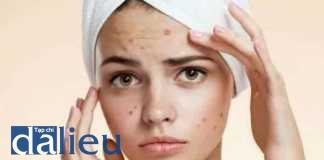 Bệnh da do ký sinh trùng và do côn trùng